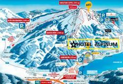 Hotel Alpinum, Kanzelhöhe 2, 9521, Treffen